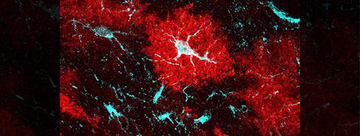 Links between unsung brain cells and Huntington's disease