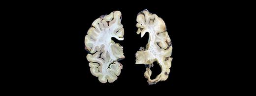Mapping the brain cells that underlie Alzheimer's disease