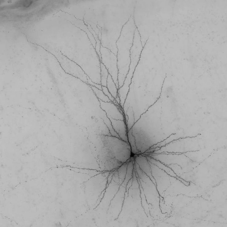 Human Spiney Neuron