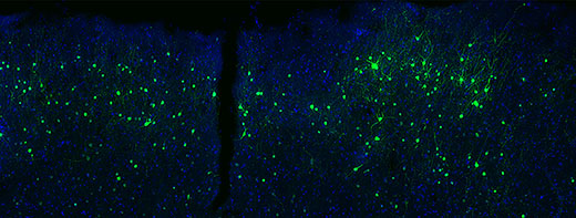 Viral tools for neuroscience could one day deliver gene therapies